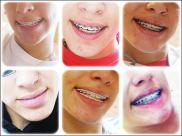 Multi-coloured braces in Brazil